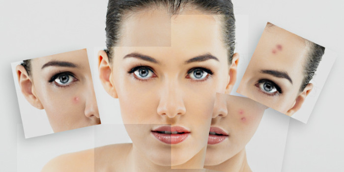 Getting Rid of Acne Scars In 3 Steps