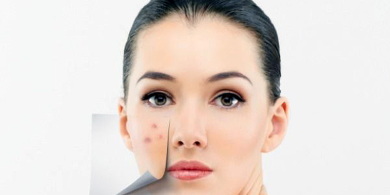 Best Home Remedies To Get Rid Of Acne Scar Permanently
