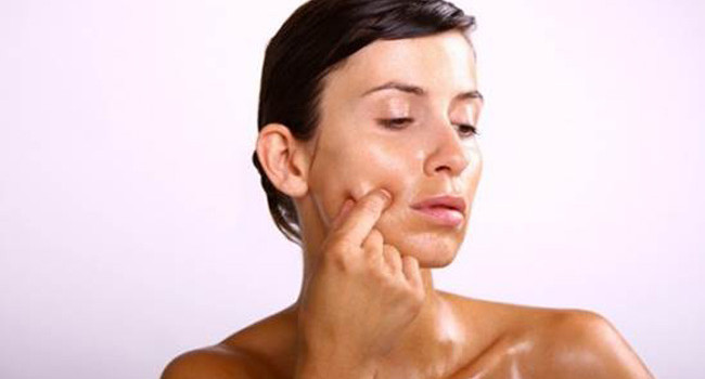 How To Take Care Of Oily Skin To Prevent Acne
