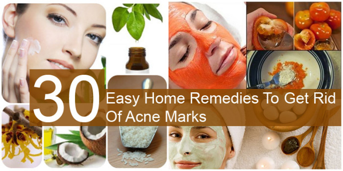 30 Easy Home Remedies To Get Rid Of Acne Marks