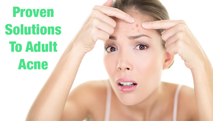 solutions to adult acne