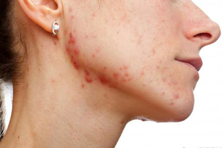 Causes of Jawline Acne