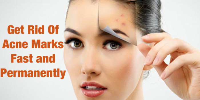 How To Get Rid Of Acne Marks Fast and Permanently
