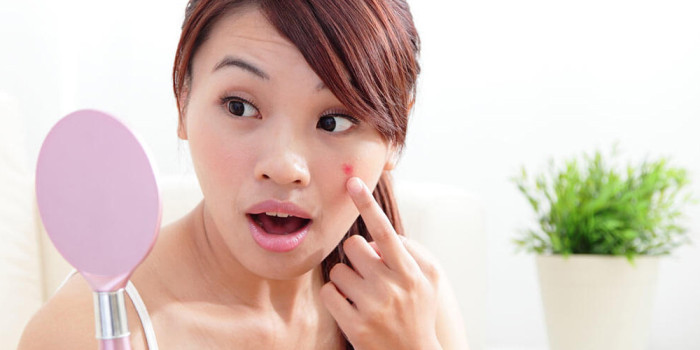 The Ultimate Guide To Prevent Acne In Teenagers